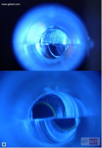 Clear rings are achieved by reducing the intensity of the slit lamp (bottom).