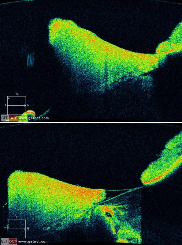 OCT laserscanner shows that the normal anterior spherical curvature of the lens is replaced by an abnormal conical or spherical forward protrusion. Cataract formation.
