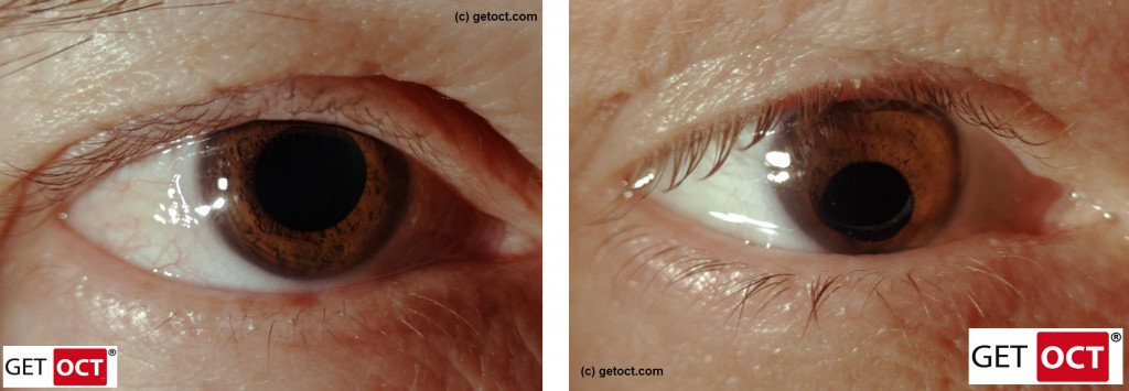 Healthy eye versus coloboma