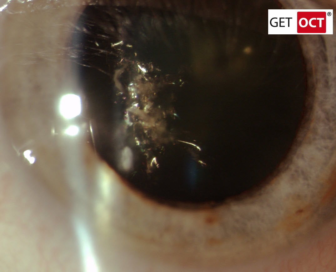 Christmas Tree Cataract In Oct Case Of The Month 12 2011