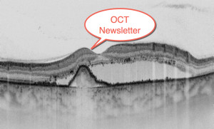 Find OCT Newsletter Dr Maloca