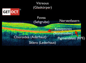 Retina Schichten layers zones. Copyright © 2014 GETOCT™ Ltd. All rights reserved.