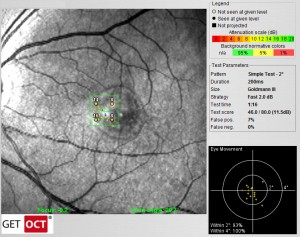 Optos OCT SLO pathological microperimetry in CNV