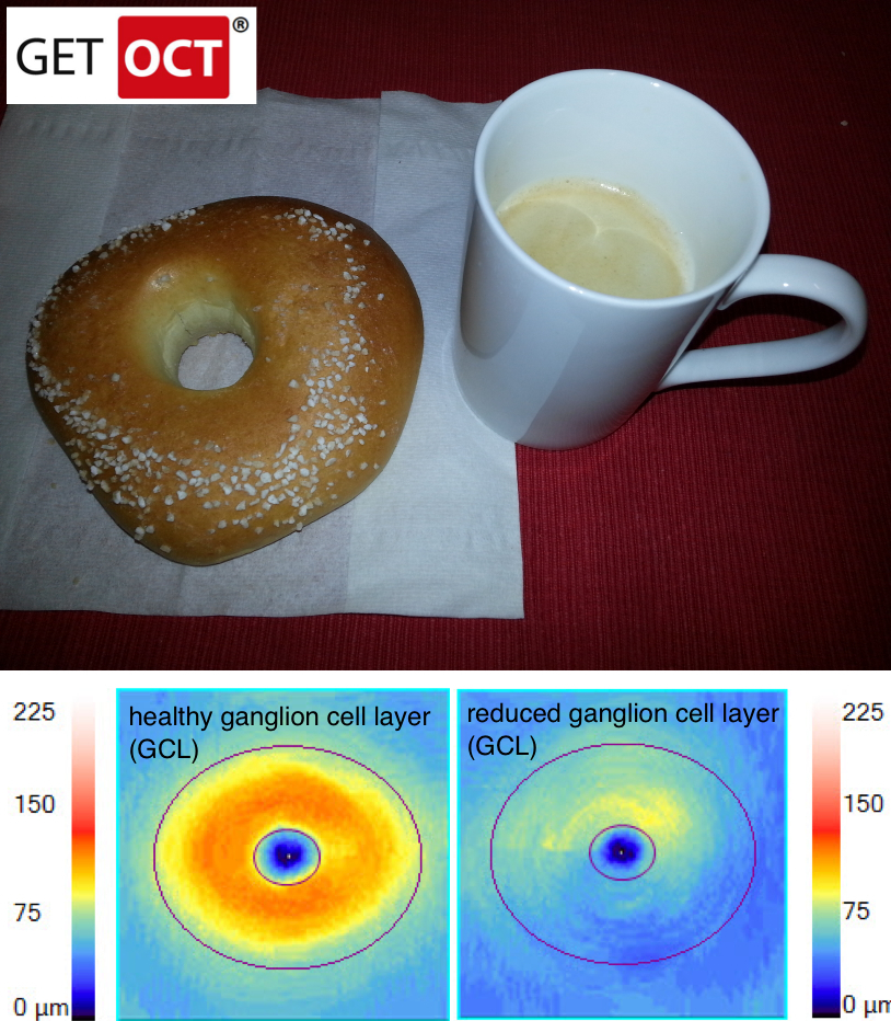 Glaucoma Homer Simpson Sign GETOCT