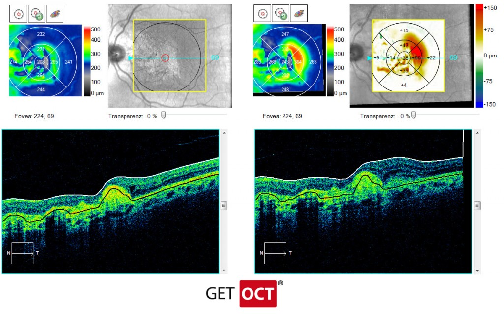 Macular change analysis cross section OCT