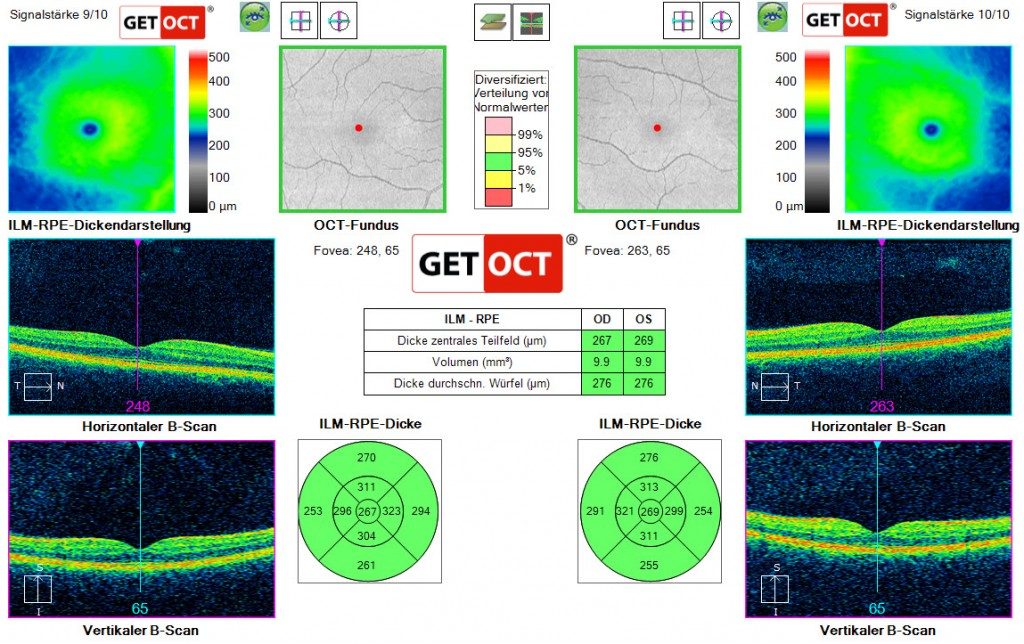 Macular thickness OU analysis GETOCT