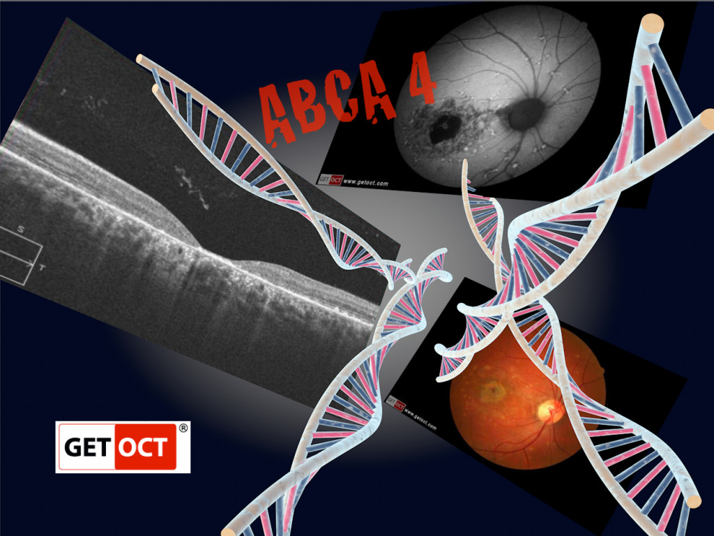 Stargardts disease is a genetic disease of the retina. Morbus Stargardt ist eine genetische Krankheit der Netzhaut. Copyright  2013 GETOCT Ltd. All rights reserved.