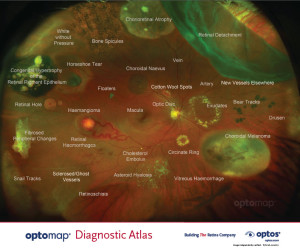 Diagnostic Atlas of Retinal Diseases. Copyright © 2013 Optos + GETOCT™ Ltd. All rights reserved.