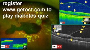 Quiz on Complication of diabetes gallery. Copyright © 2014 GETOCT™ Ltd. All rights reserved.