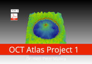 OCT Atlas Project 1 Cover. Copyright ©2014 GETOCT™ Ltd. All rights reserved.
